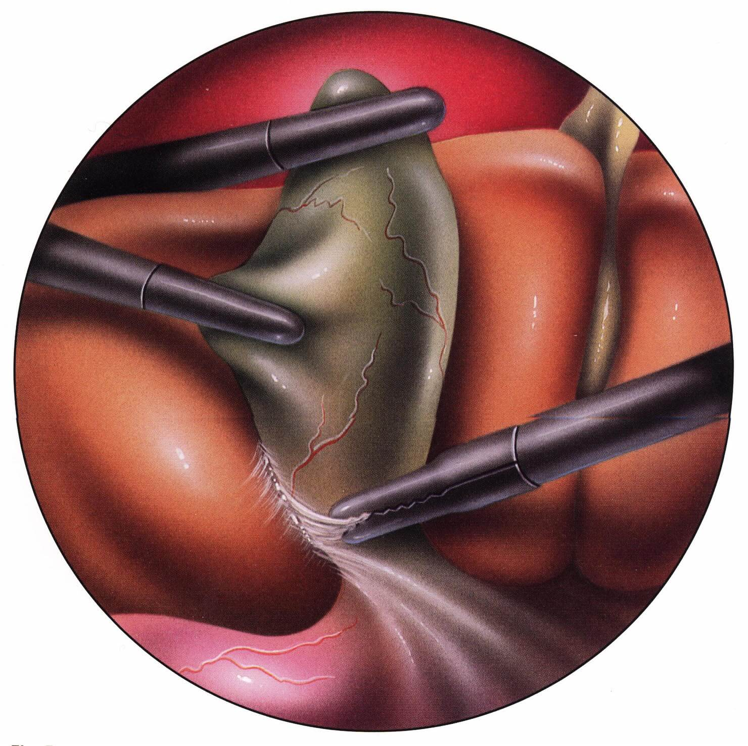 L.Cholecystectomy1  Χοληδόχος Κύστη L