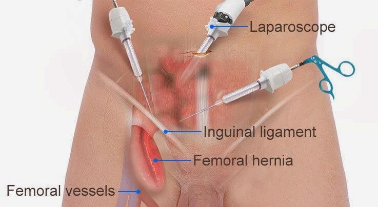 Laparoscopic-femoral-Hernia-repair  Μηροκήλη Laparoscopic femoral Hernia repair