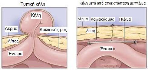 hernia1ellinika  Ομφαλοκήλη hernia1ellinika