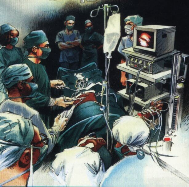 laparoskopic ΓΟΠ Barrett Διαφραγματοκήλη ΓΟΠ Barrett laparoskopic