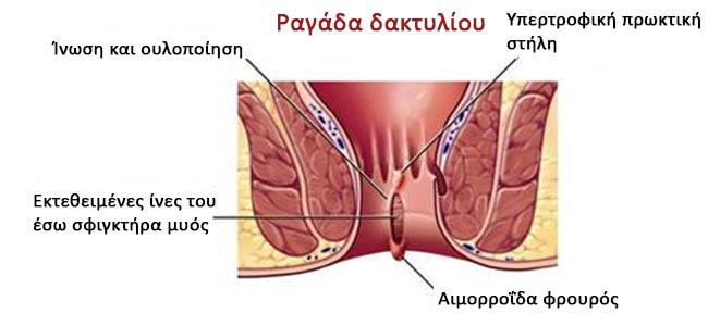 sentinal-pile  Ραγάδα Δακτυλίου sentinal pile