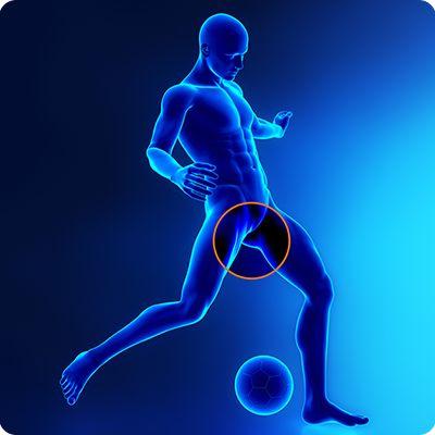 sindromo_koiliakon_prosagogon11  Επέμβαση αθλητικής κήλης: μια αποτελεσματική θεραπεία sindromo koiliakon prosagogon11