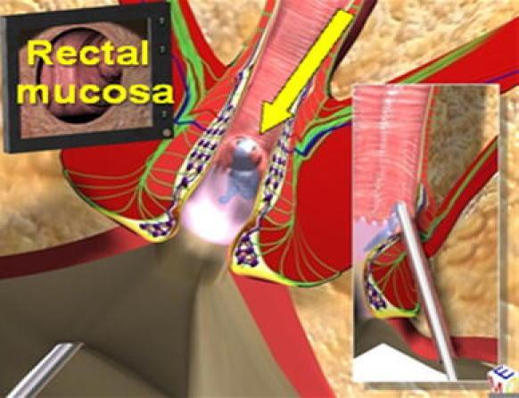 vaaft2  Video Assisted Anal Fistula Treatment -VAAFT -  Ενδοσκοπικά Υποβοηθούμενη εκτομή περιεδρικών  συριγγίων VAAFT2