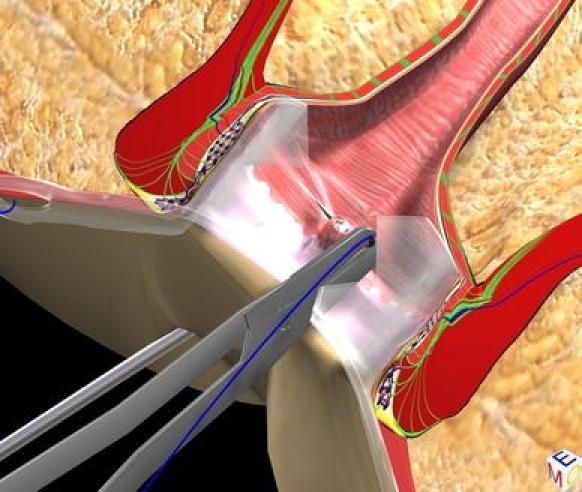 vaaft4  Video Assisted Anal Fistula Treatment -VAAFT -  Ενδοσκοπικά Υποβοηθούμενη εκτομή περιεδρικών  συριγγίων VAAFT4